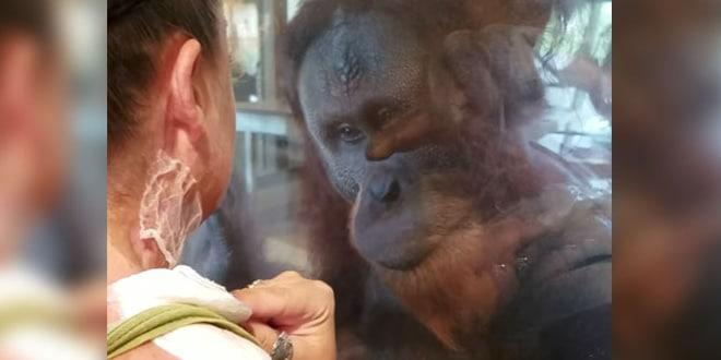 Az égési sebeket nézi az orangután a nő nyakán